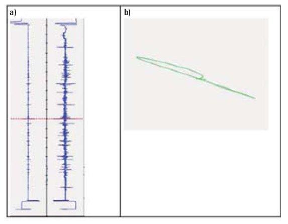 Rys.5. Sygnały wewnętrznego różnicowego przetwornika przelotowego: przebiegi składowej urojonej (z lewej strony) i składowej rzeczywistej (z prawej strony) (a) oraz trajektoria zmian sygnałów (b) dla uszkodzenia naturalnego o głębokości 60% grubości ści.